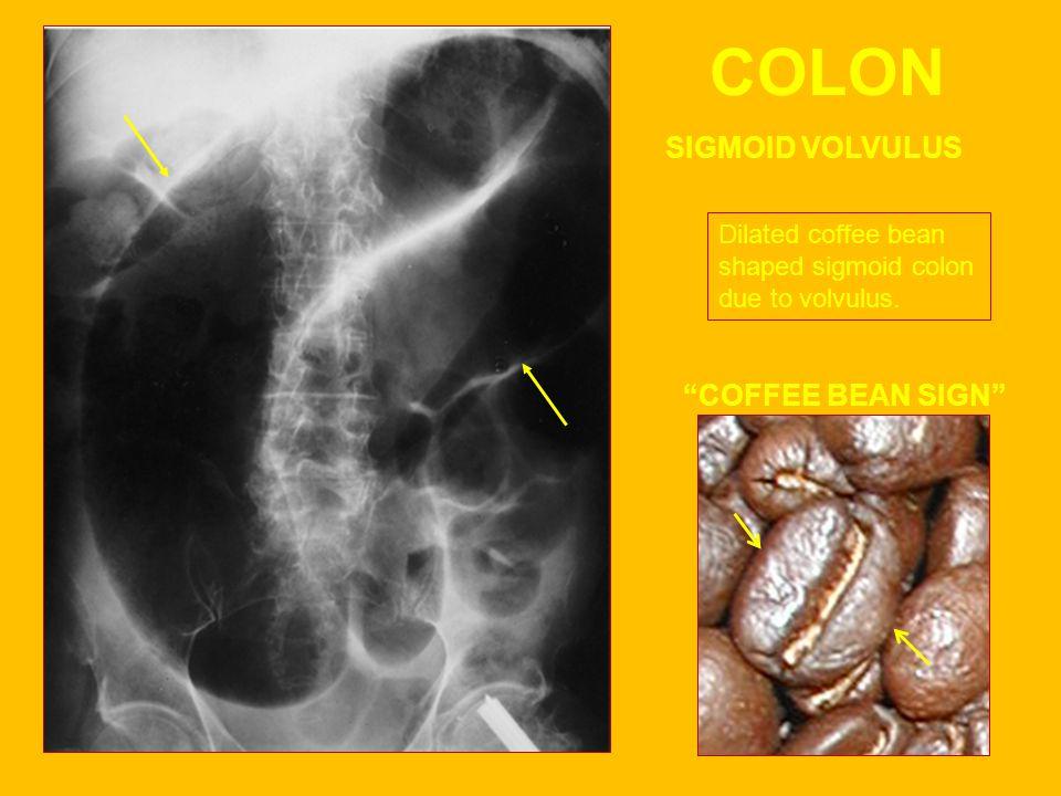 COLON SIGMOID VOLVULUS COFFEE BEAN SIGN
