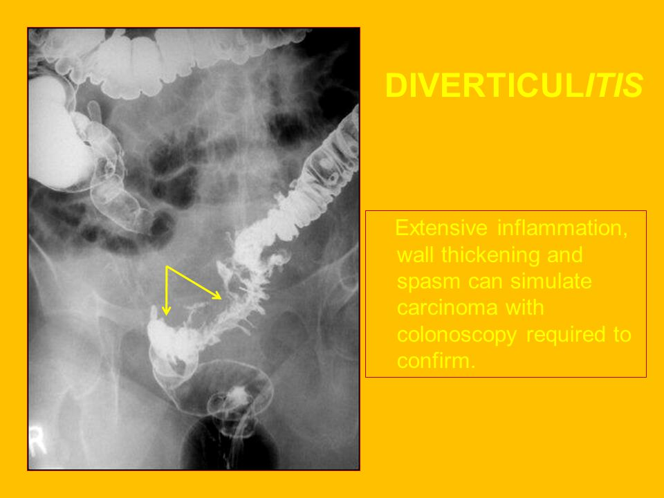 DIVERTICULITIS Extensive inflammation, wall thickening and spasm can simulate carcinoma with colonoscopy required to confirm.