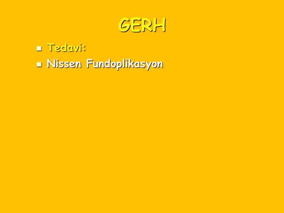 GERH Tedavi: Nissen Fundoplikasyon