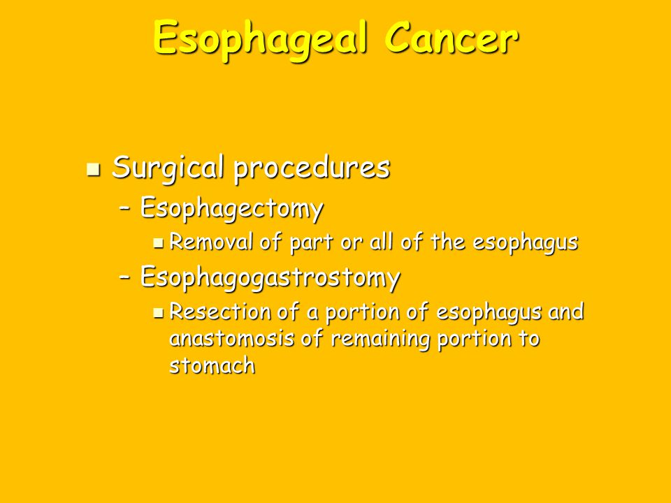 Esophageal Cancer Surgical procedures Esophagectomy