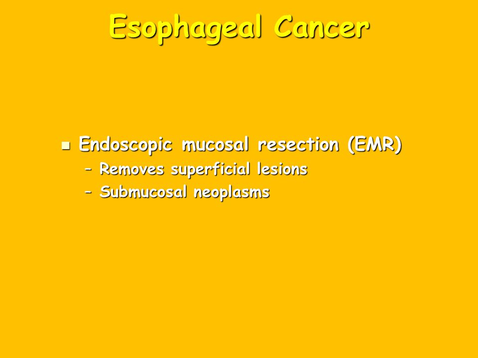 Esophageal Cancer Endoscopic mucosal resection (EMR)