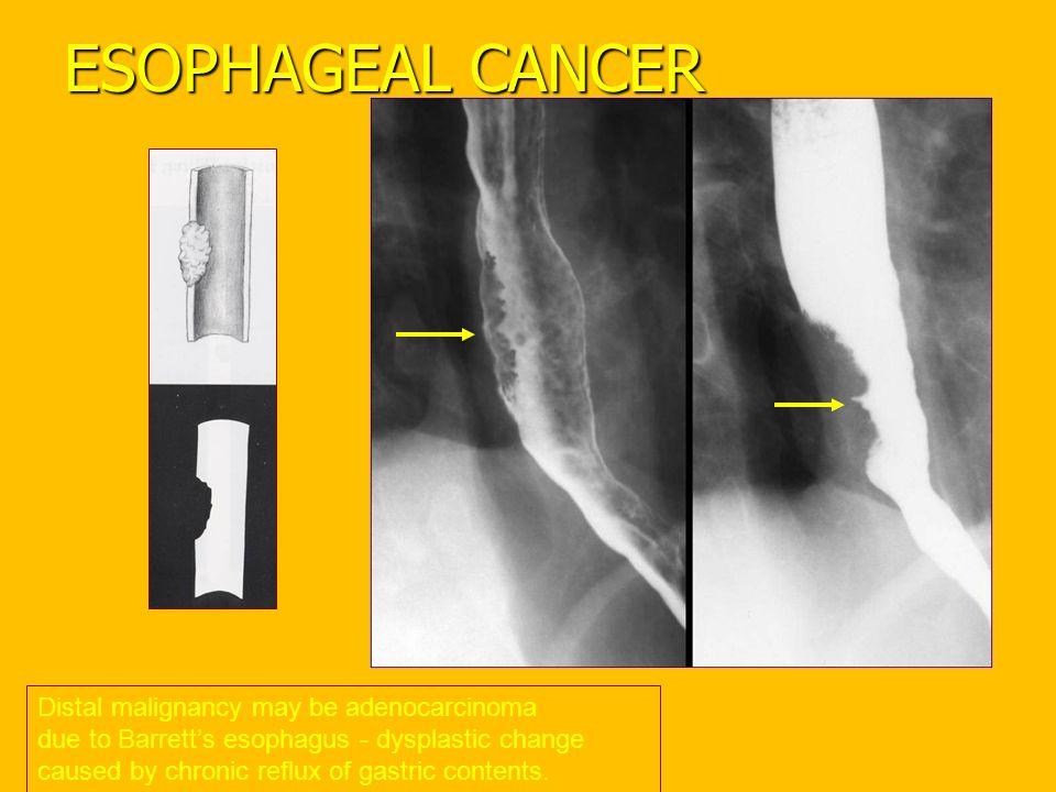 ESOPHAGEAL CANCER Distal malignancy may be adenocarcinoma