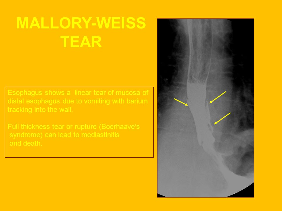MALLORY-WEISS TEAR Esophagus shows a linear tear of mucosa of