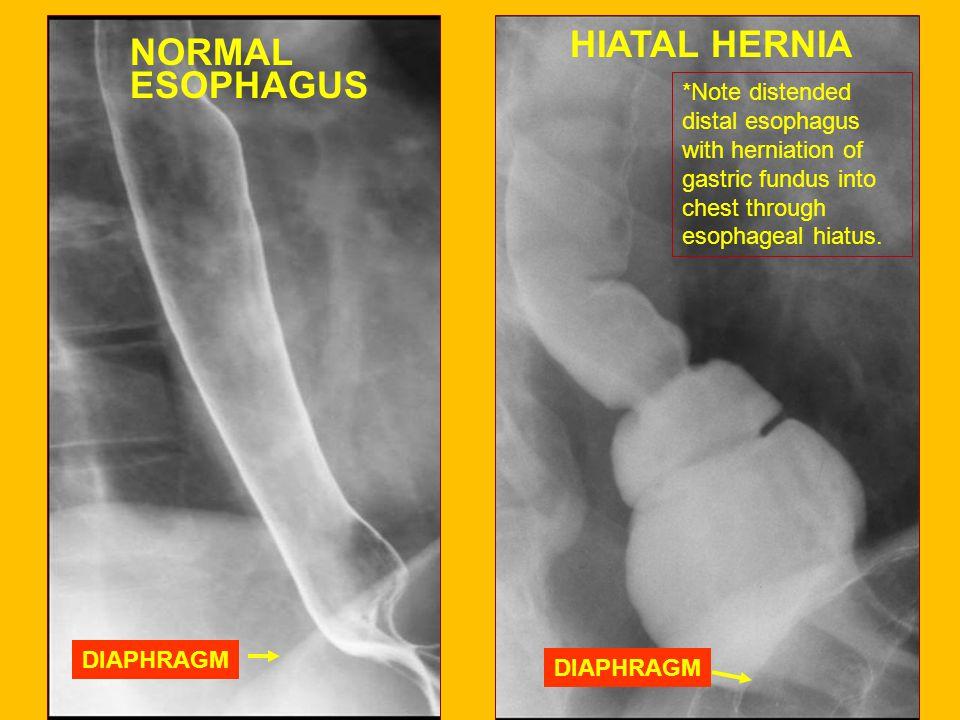 HIATAL HERNIA NORMAL ESOPHAGUS