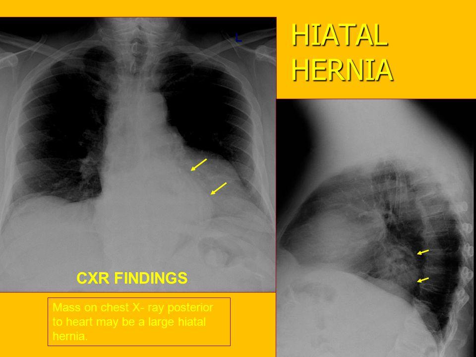 HIATAL HERNIA CXR FINDINGS L