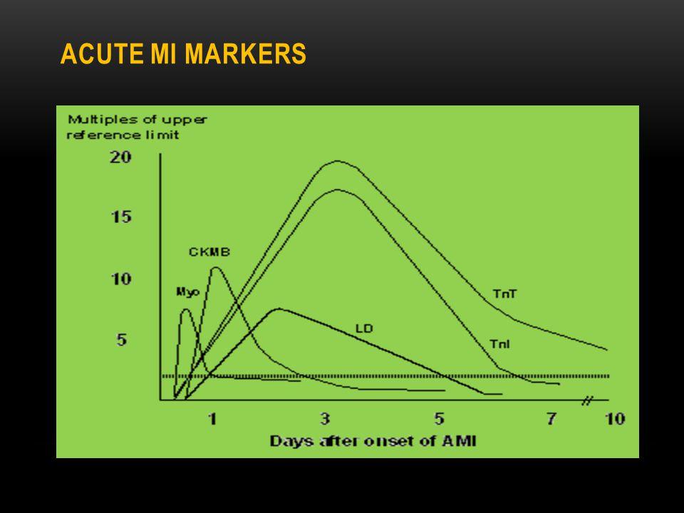 Acute MI markers