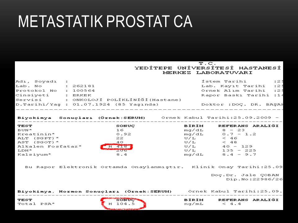 Metastatik prostat Ca
