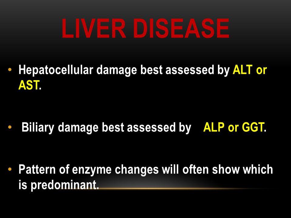 Liver disease Hepatocellular damage best assessed by ALT or AST.