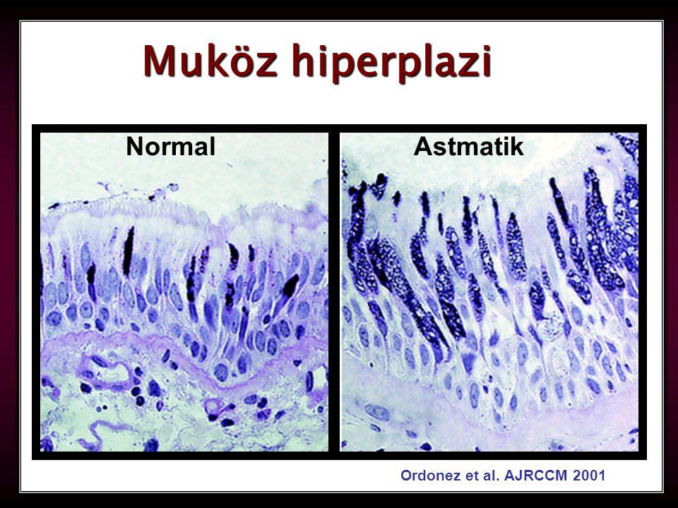 Muköz hiperplazi Normal Astmatik Ordonez et al. AJRCCM 2001