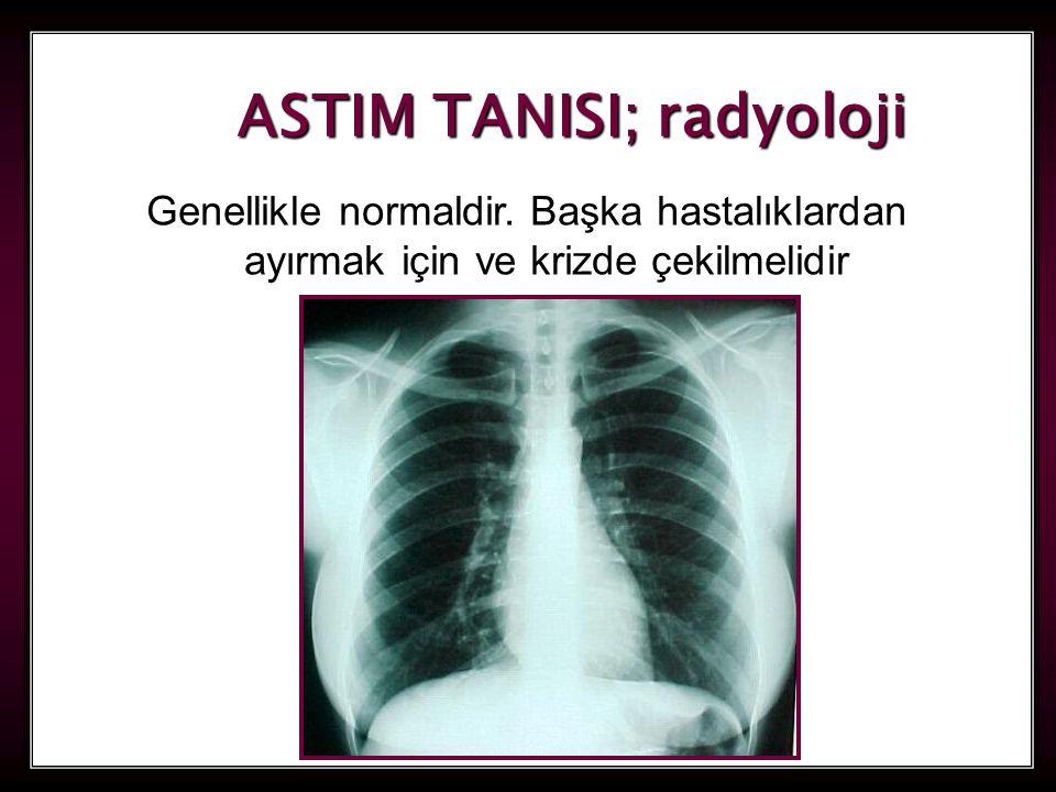 ASTIM TANISI; radyoloji
