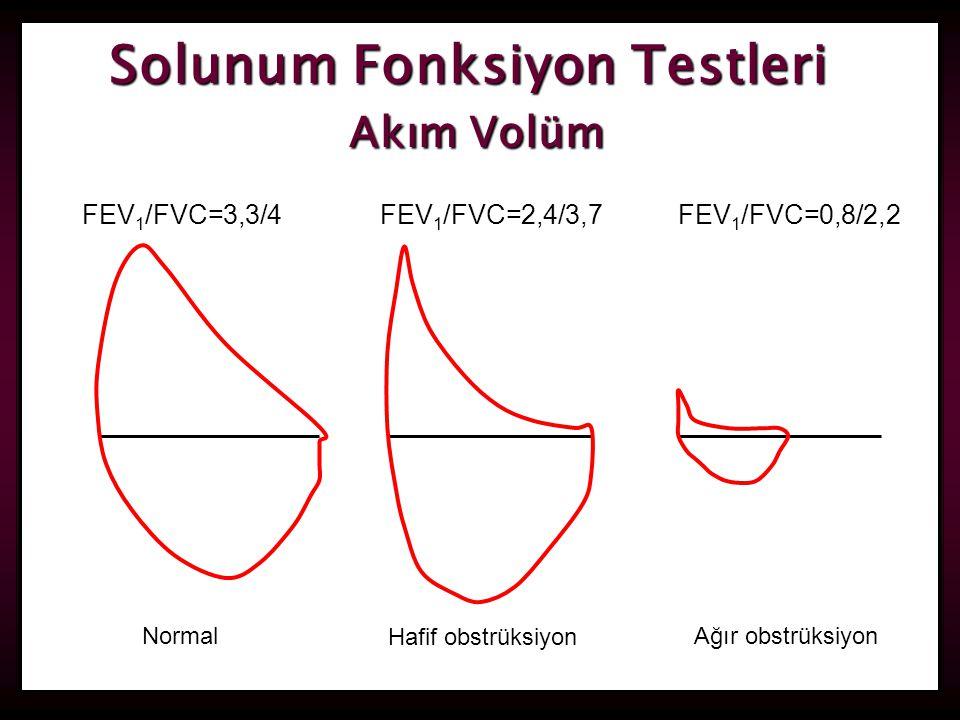 Solunum Fonksiyon Testleri Akım Volüm