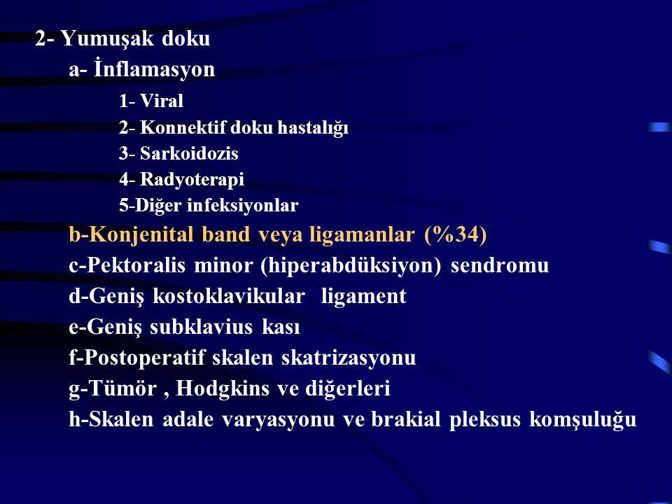 b-Konjenital band veya ligamanlar (%34)