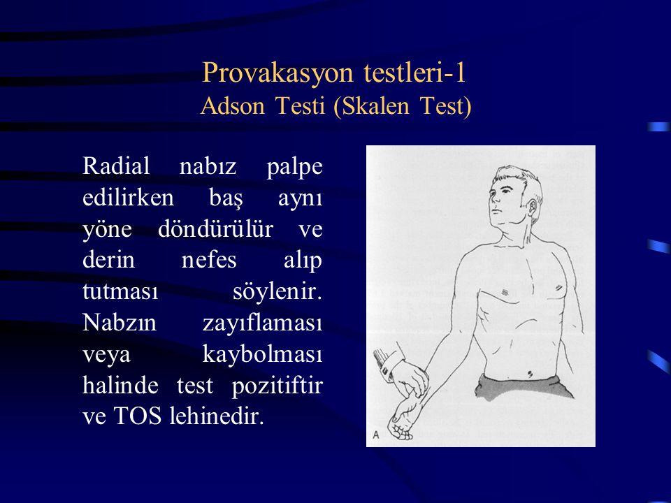 Provakasyon testleri-1 Adson Testi (Skalen Test)