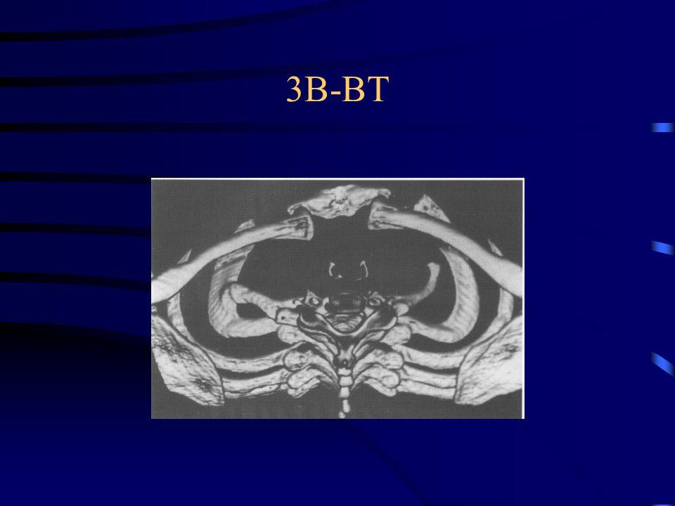 3B-BT