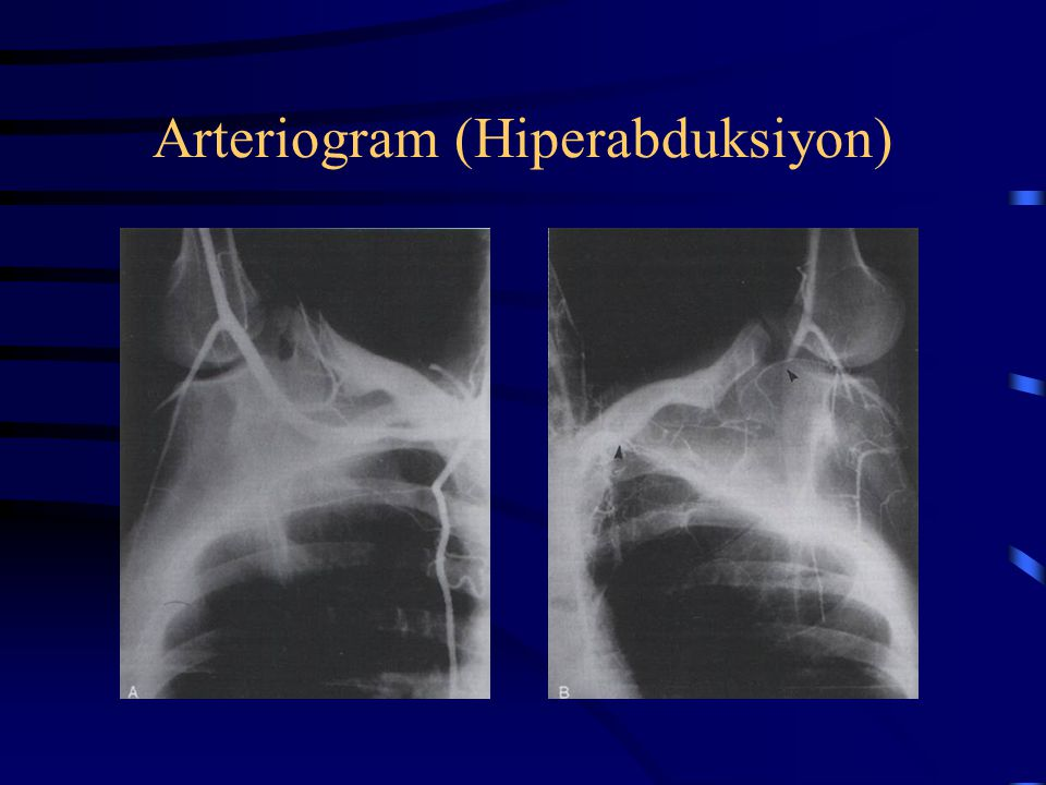 Arteriogram (Hiperabduksiyon)