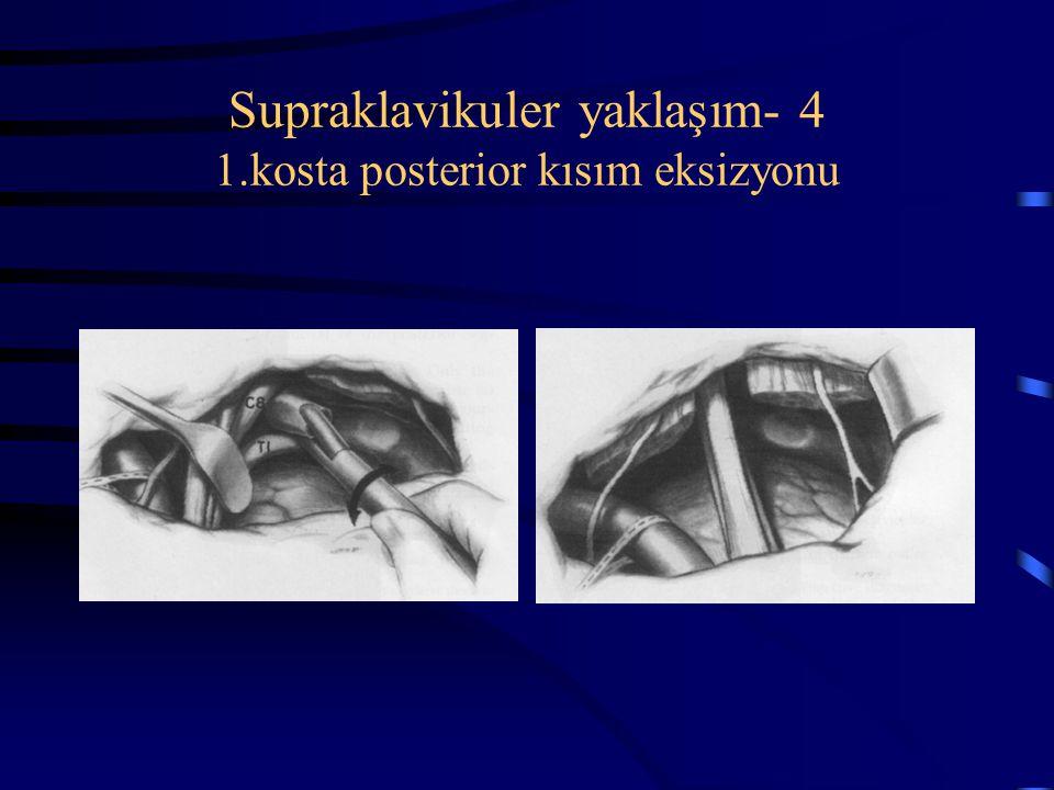 Supraklavikuler yaklaşım- 4 1.kosta posterior kısım eksizyonu