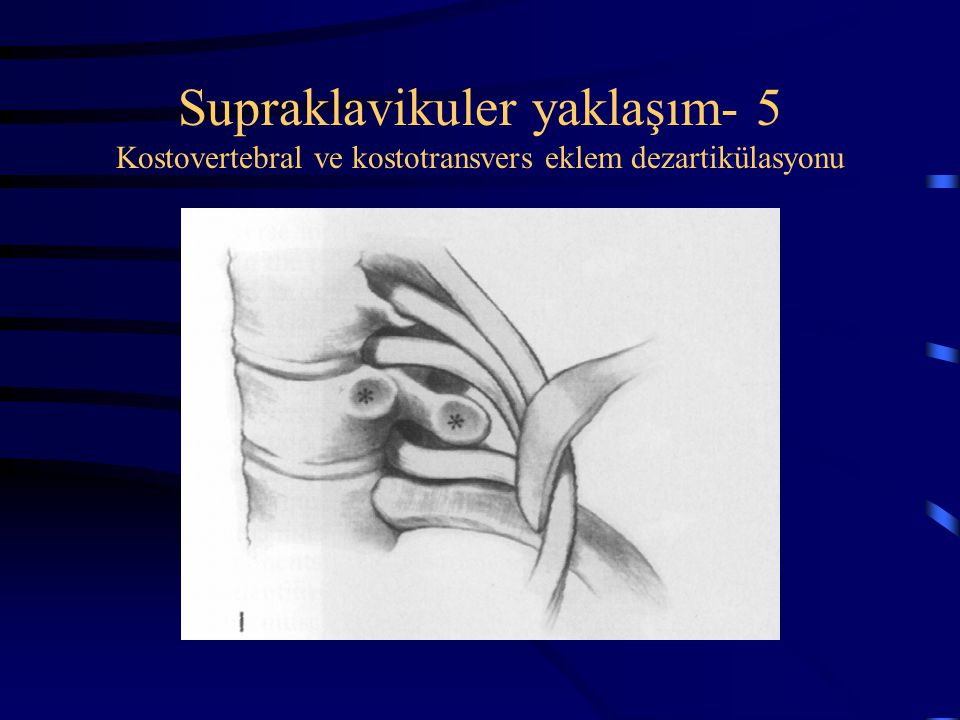 Supraklavikuler yaklaşım- 5 Kostovertebral ve kostotransvers eklem dezartikülasyonu