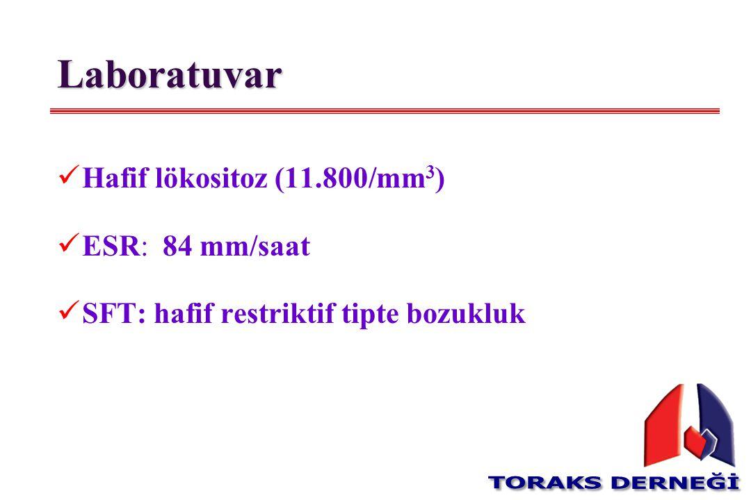 Laboratuvar Hafif lökositoz (11.800/mm3) ESR: 84 mm/saat