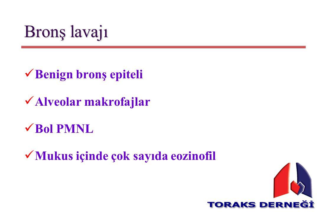 Bronş lavajı Benign bronş epiteli Alveolar makrofajlar Bol PMNL