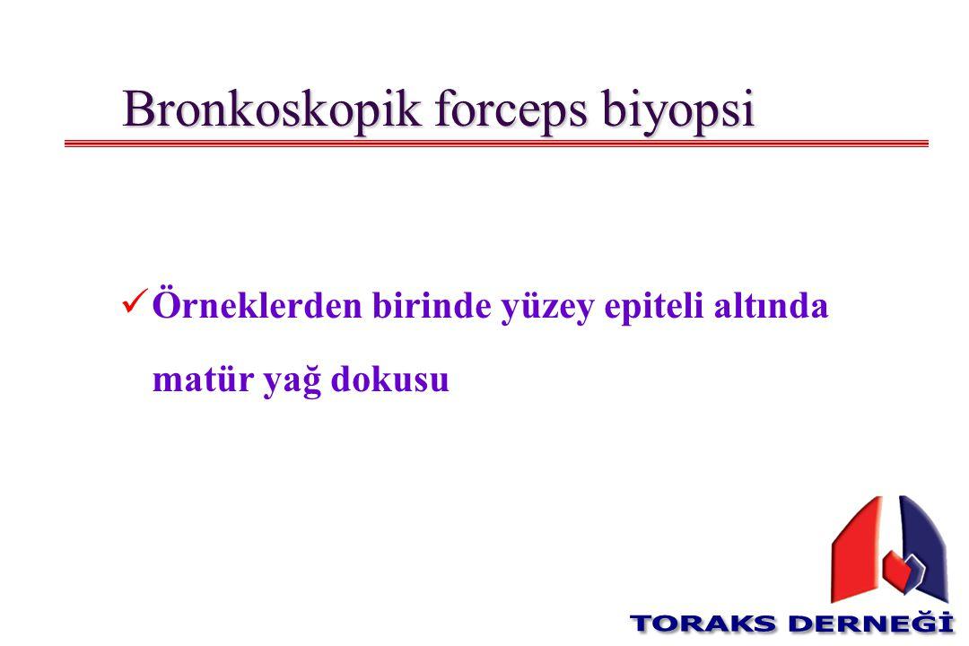 Bronkoskopik forceps biyopsi