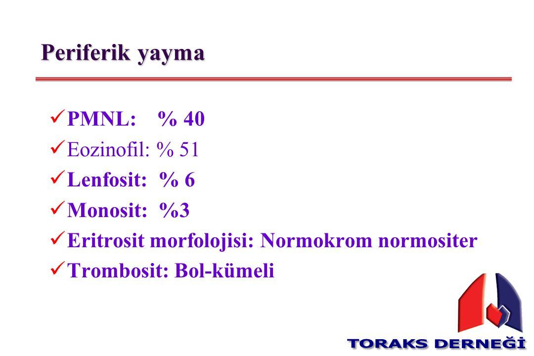 Periferik yayma PMNL: % 40 Eozinofil: % 51 Lenfosit: % 6 Monosit: %3
