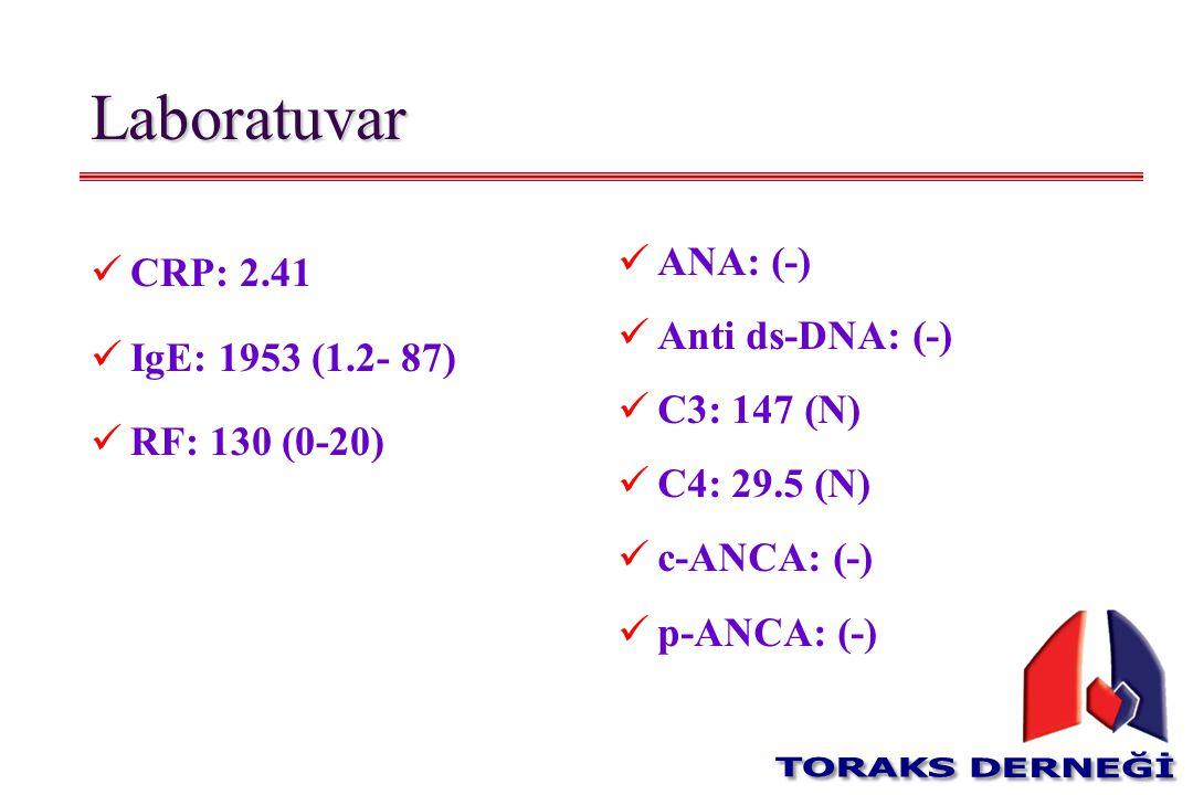 Laboratuvar CRP: 2.41 IgE: 1953 (1.2- 87) RF: 130 (0-20) ANA: (-)
