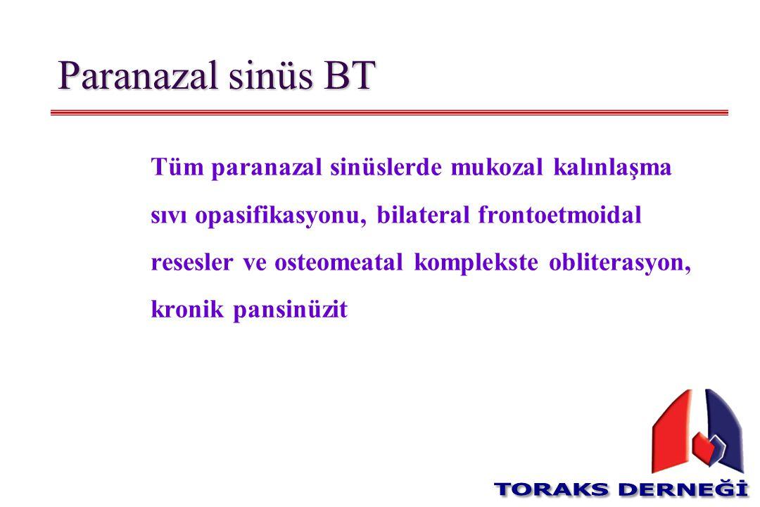 Paranazal sinüs BT