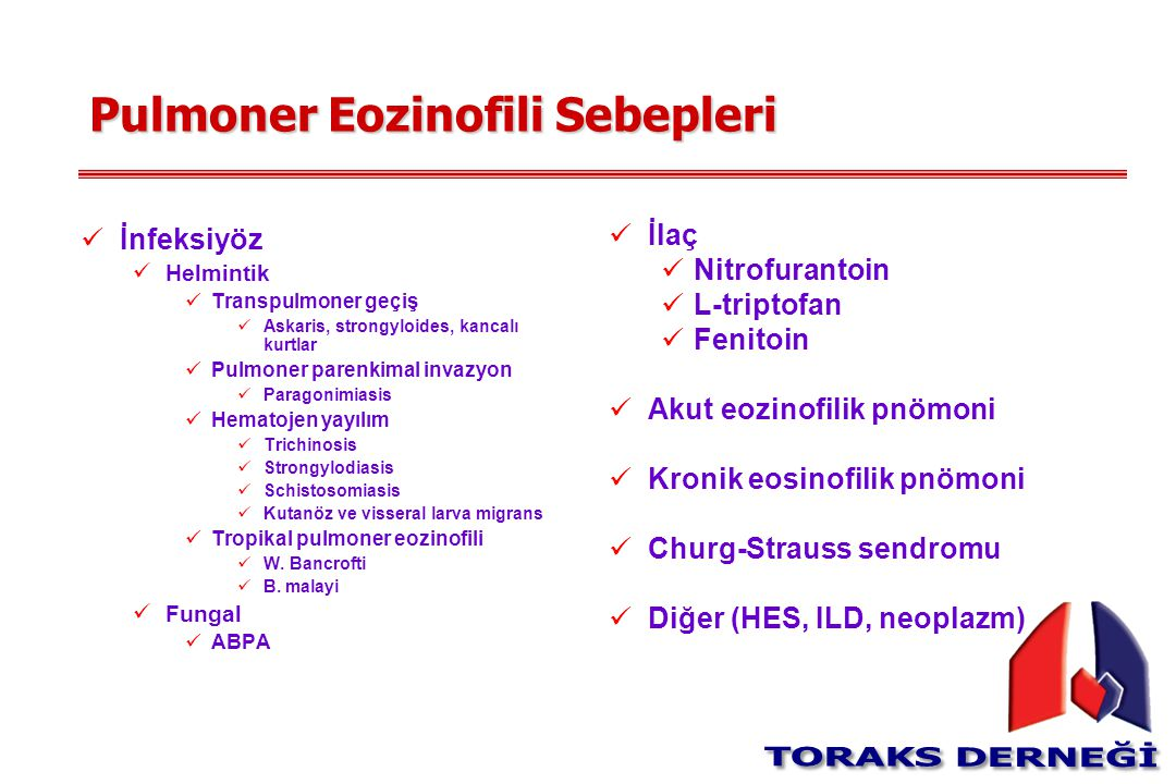 Pulmoner Eozinofili Sebepleri