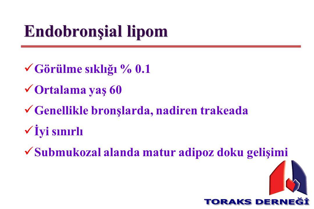 Endobronşial lipom Görülme sıklığı % 0.1 Ortalama yaş 60