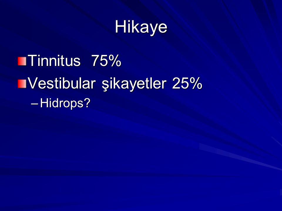 Hikaye Tinnitus 75% Vestibular şikayetler 25% Hidrops