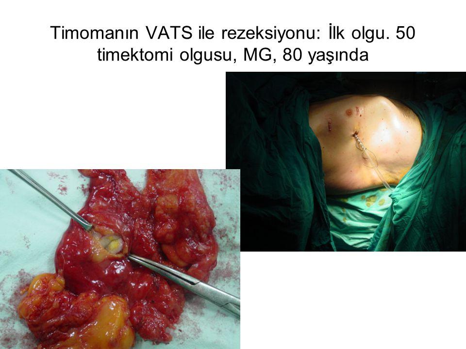 Timomanın VATS ile rezeksiyonu: İlk olgu
