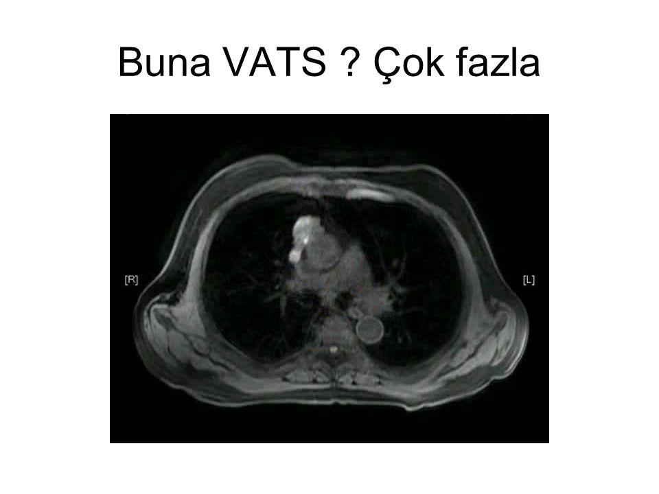 Buna VATS Çok fazla