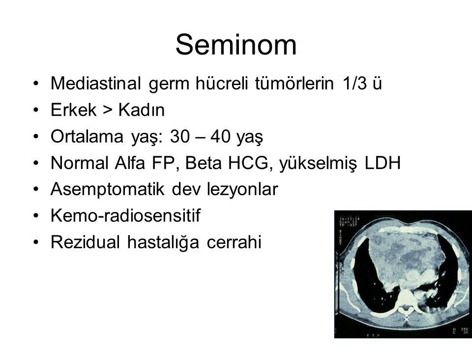 Seminom Mediastinal germ hücreli tümörlerin 1/3 ü Erkek > Kadın