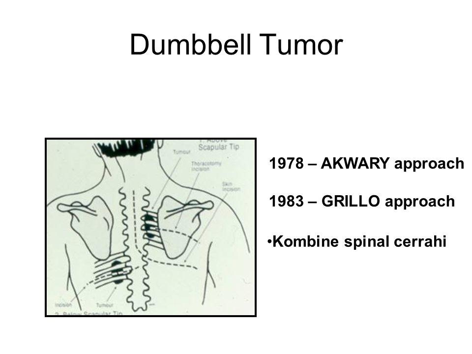 Dumbbell Tumor 1978 – AKWARY approach 1983 – GRILLO approach
