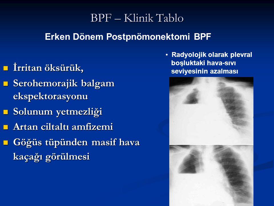 BPF – Klinik Tablo İrritan öksürük,