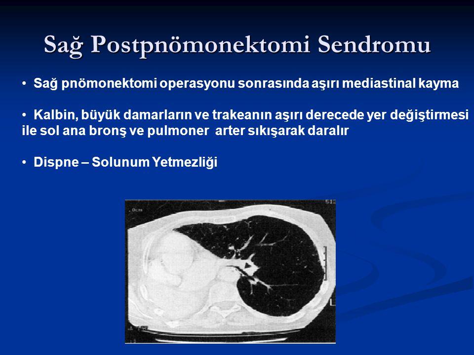 Sağ Postpnömonektomi Sendromu