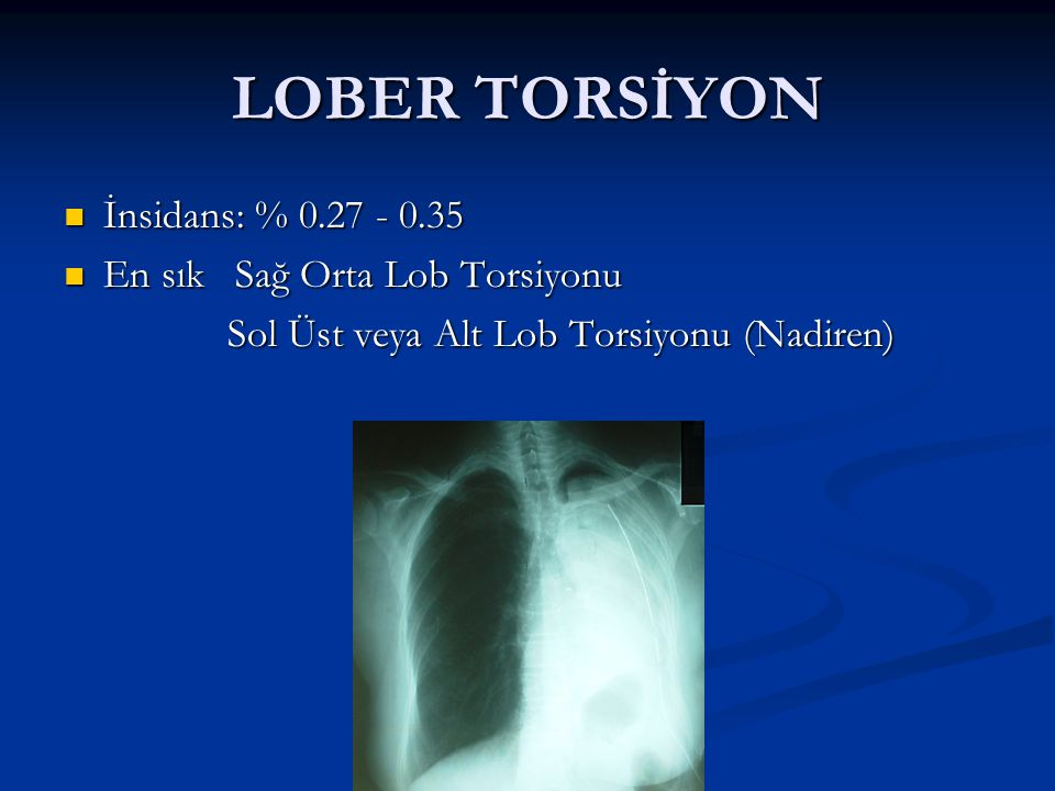 LOBER TORSİYON İnsidans: % 0.27 - 0.35 En sık Sağ Orta Lob Torsiyonu