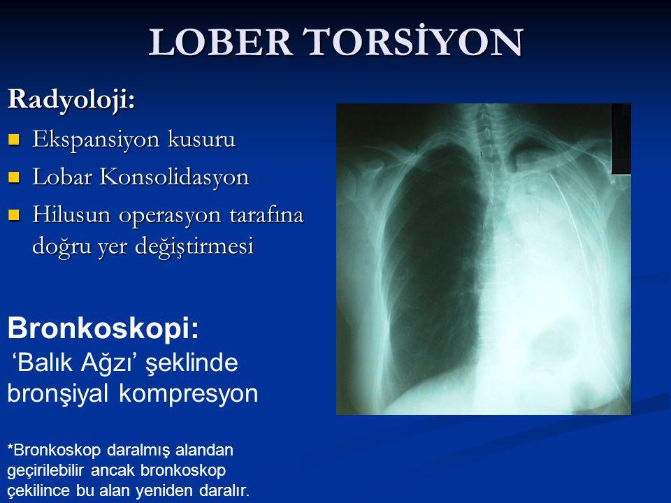LOBER TORSİYON Radyoloji: Bronkoskopi: Ekspansiyon kusuru