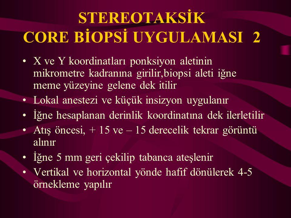 STEREOTAKSİK CORE BİOPSİ UYGULAMASI 2