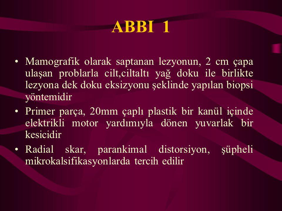 ABBI 1