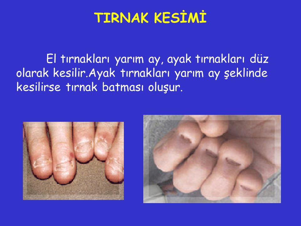 TIRNAK KESİMİ El tırnakları yarım ay, ayak tırnakları düz olarak kesilir.Ayak tırnakları yarım ay şeklinde kesilirse tırnak batması oluşur.