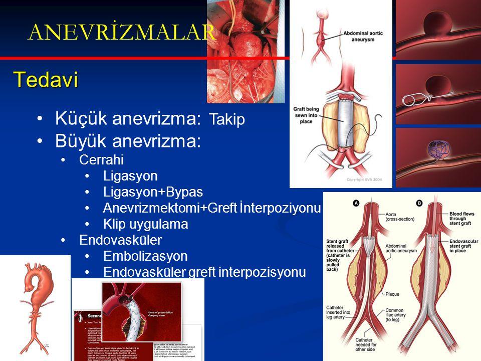 ANEVRİZMALAR Tedavi Küçük anevrizma: Takip Büyük anevrizma: Cerrahi