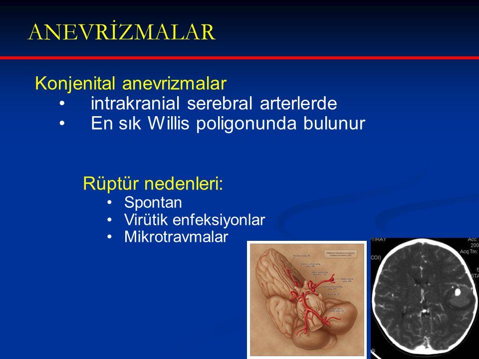 ANEVRİZMALAR Konjenital anevrizmalar intrakranial serebral arterlerde