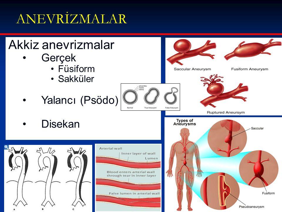 ANEVRİZMALAR Akkiz anevrizmalar Gerçek Yalancı (Psödo) Disekan