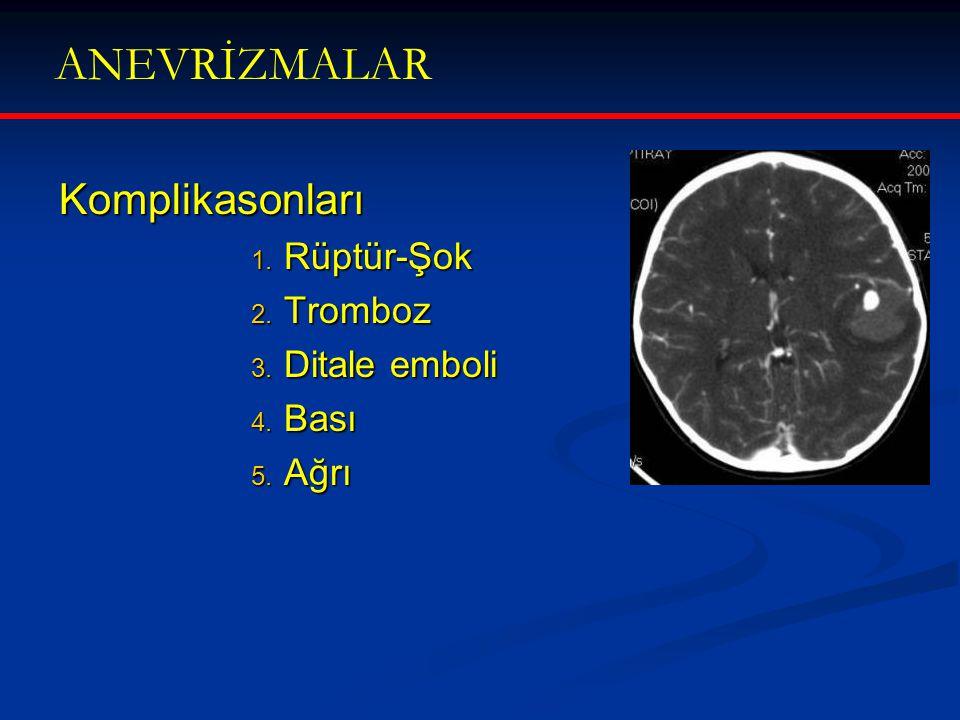 ANEVRİZMALAR Komplikasonları Rüptür-Şok Tromboz Ditale emboli Bası