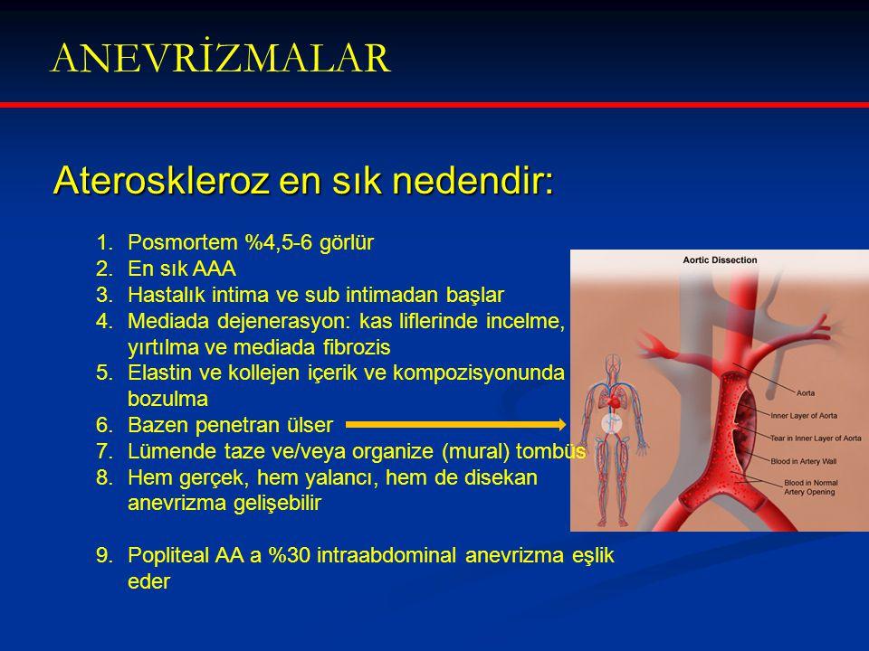 ANEVRİZMALAR Ateroskleroz en sık nedendir: Posmortem %4,5-6 görlür