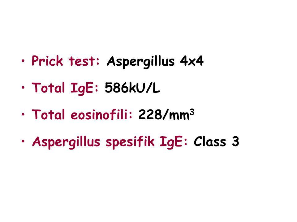 Prick test: Aspergillus 4x4