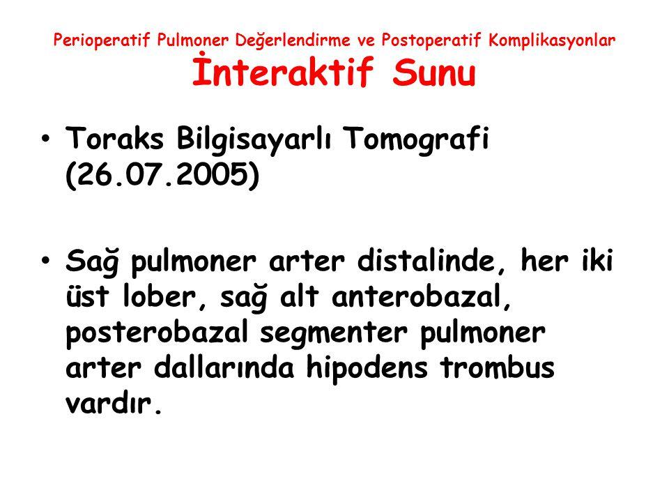 Toraks Bilgisayarlı Tomografi (26.07.2005)