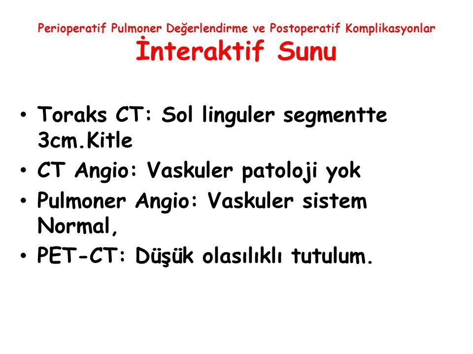 Toraks CT: Sol linguler segmentte 3cm.Kitle