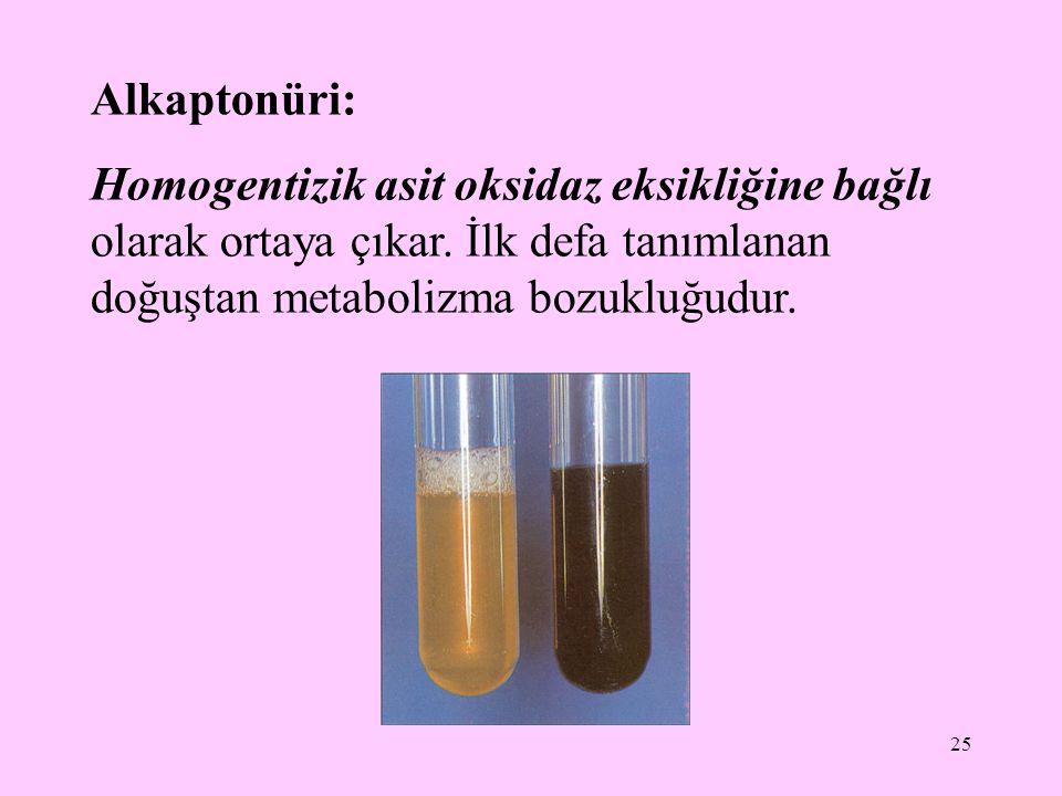Alkaptonüri: Homogentizik asit oksidaz eksikliğine bağlı olarak ortaya çıkar.